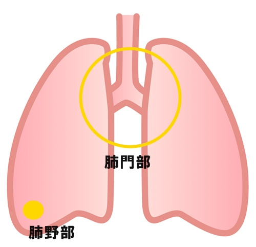 肺がん 発生場所