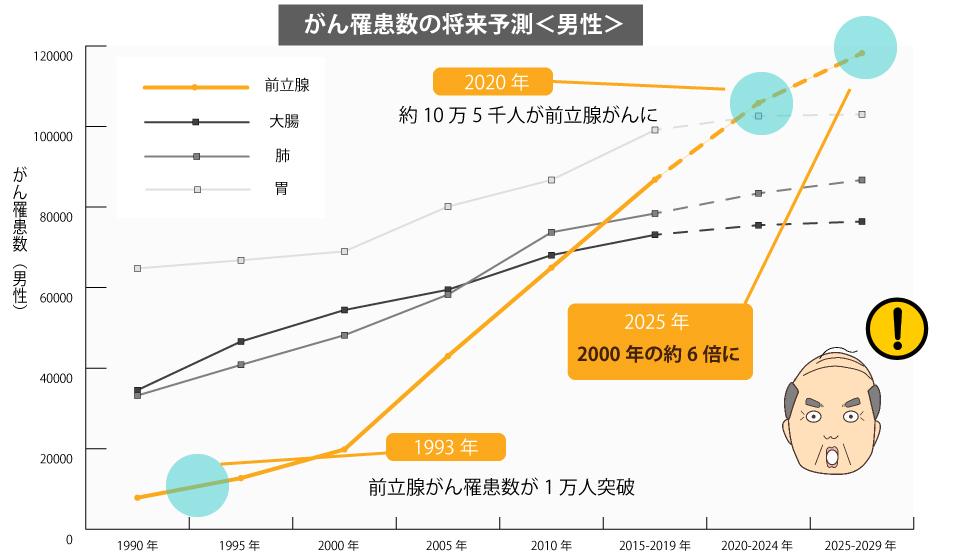がん罹患数の将来予測・男性(1990-2029年)